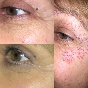 Anti wrinkle treatment Eternal Youth