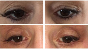 Plasma Pen treatment before and after results Eternal Youth